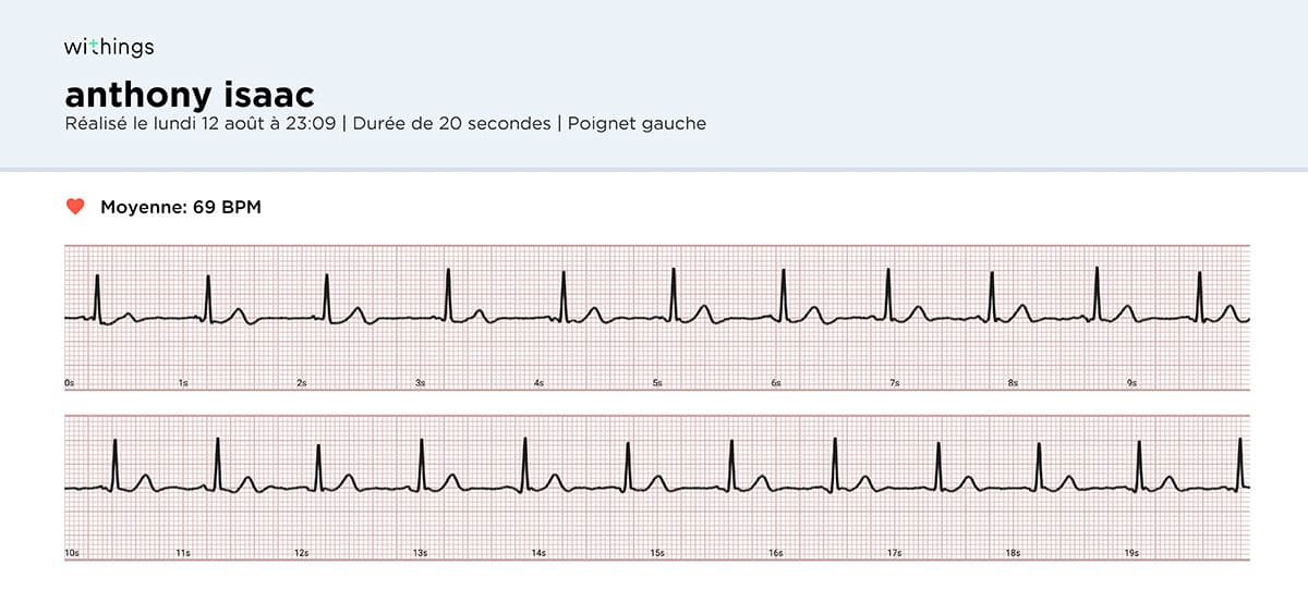 Sortie PDF d'un enregistrement d'ECG avec le BPM core de Withings