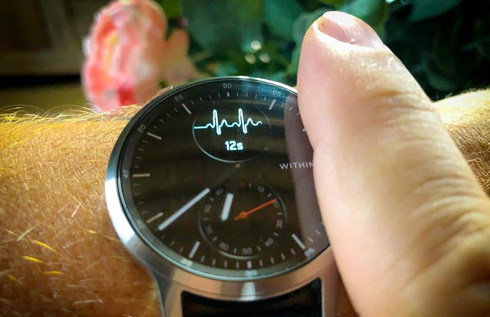 Enregistrement d'un ECG avec la Withings ScanWatch